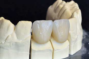 Ceramic Crowns in Modesto