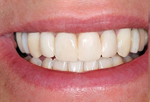 Modesto Before and After Dental Bleaching