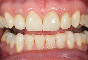Before and After Dental Implants in Modesto