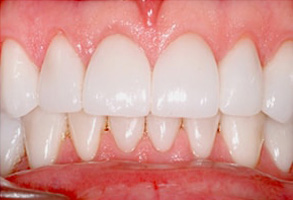 Before and After Teeth Whitening in Modesto