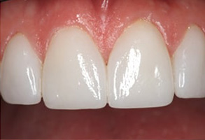 Modesto Before and After Dental Bridges
