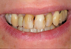 Before and After Dental Bleaching in Modesto