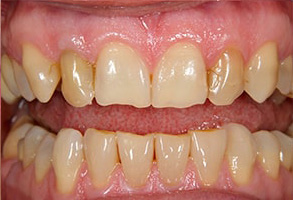 Modesto Before and After Dental Implants