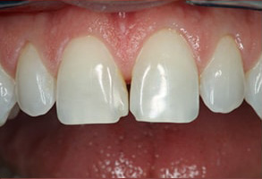 Before and After Dental Bridges in Modesto